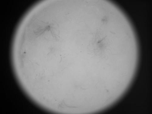 检测羽绒杂质